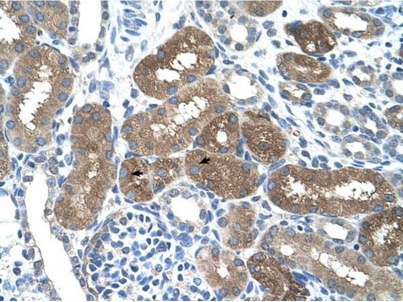 Immunohistochemistry (IHC) image for anti-SOCS1 antibody (Suppressor of Cytokine Signaling 1) (N-Term) (ABIN630223)