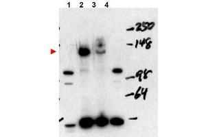 image for anti-Nuclear Receptor Coactivator 3 (NCOA3) (Internal Region), (Isoform A) antibody (ABIN401409)