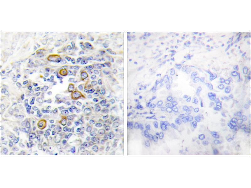 Immunohistochemistry (IHC) image for anti-CD83 antibody (CD83) (ABIN2163441)