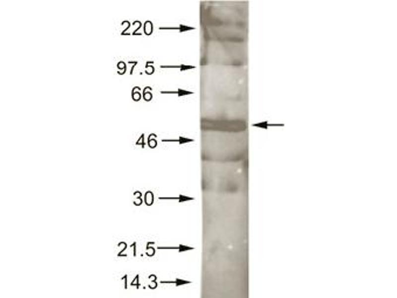 Western Blotting (WB) image for anti-AKT antibody (V-Akt Murine Thymoma Viral Oncogene Homolog 1) (AA 460-480) (ABIN117898)