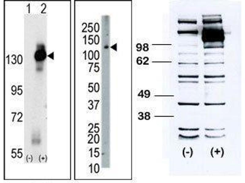 Western Blotting (WB) image for anti-CSF1R antibody (Colony Stimulating Factor 1 Receptor) (C-Term) (ABIN4620392)