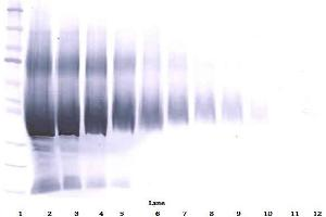 Western Blotting (WB) image for anti-IGFBP5 antibody (Insulin-Like Growth Factor Binding Protein 5) (ABIN181656)