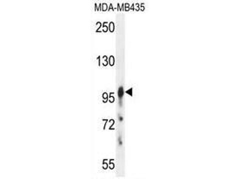 Western Blotting (WB) image for anti-AXIN1 antibody (Axin 1) (C-Term) (ABIN950582)