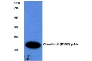 Western Blotting (WB) image for anti-Claudin 4 (CLDN4) antibody (ABIN407633)