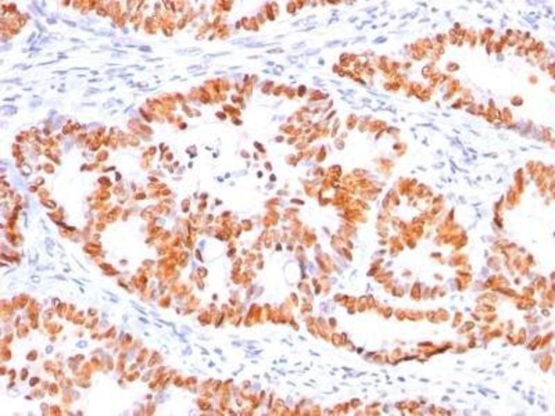 Immunohistochemistry (Paraffin-embedded Sections) (IHC (p)) image for anti-Tumor Protein p53 (TP53) (AA 16-25), (N-Term) antibody (ABIN4342783)
