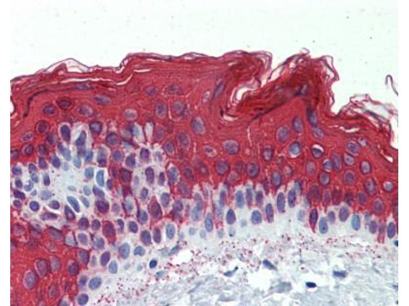 Immunohistochemistry (IHC) image for anti-Keratin 1 (KRT1) (Middle Region) antibody (ABIN405458)