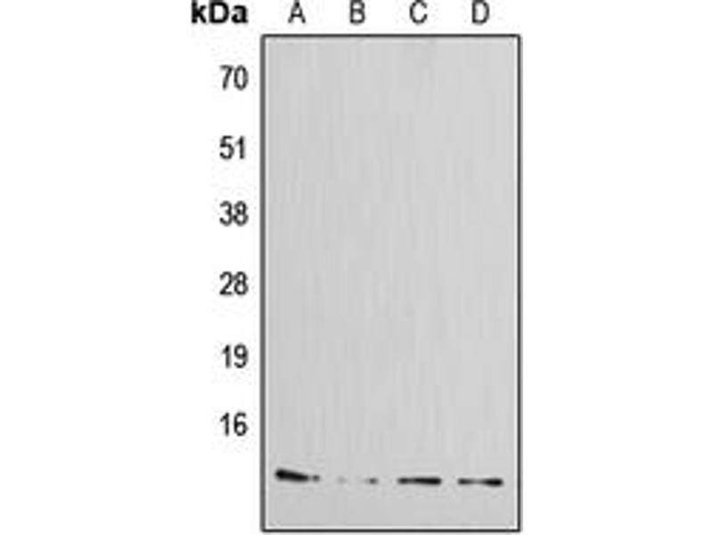 Western Blotting (WB) image for anti-Islet Amyloid Polypeptide (IAPP) (N-Term) antibody (ABIN2707331)