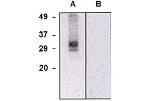 Image no. 1 for anti-Chloride Intracellular Channel 5 (CLIC5) (AA 160-173) antibody (ABIN2749078)