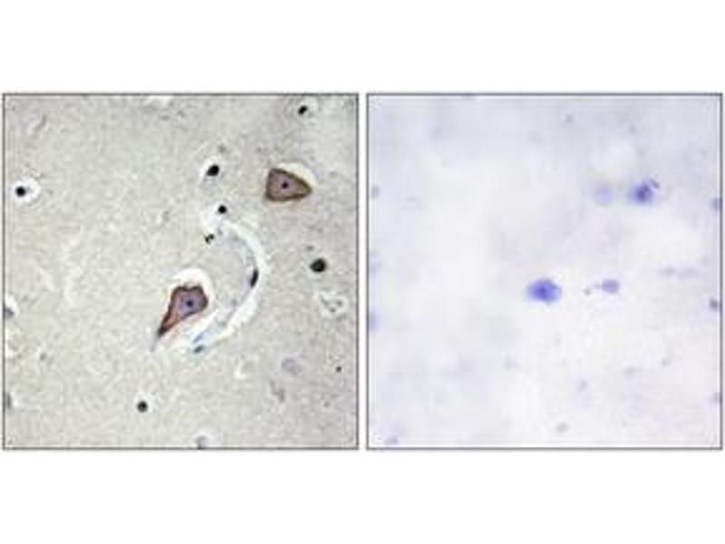 Immunohistochemistry (IHC) image for anti-HER2 antibody (V-Erb-B2 erythroblastic Leukemia Viral Oncogene Homolog 2, Neuro/glioblastoma Derived Oncogene Homolog (Avian)) (ABIN1532623)