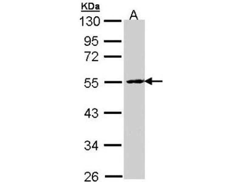 Western Blotting (WB) image for anti-Protein Phosphatase 2, Regulatory Subunit B, beta (PPP2R2B) (Center) antibody (ABIN442987)