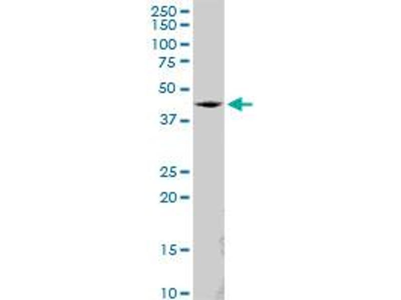 Western Blotting (WB) image for anti-Synovial Sarcoma Translocation, Chromosome 18 (SS18) (AA 1-418) antibody (ABIN520525)