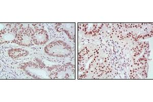 Immunohistochemistry (IHC) image for anti-MLH1 antibody (MutL Homolog 1, Colon Cancer, Nonpolyposis Type 2 (E. Coli)) (AA 381-483) (ABIN969285)