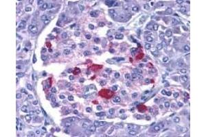 Immunohistochemistry (Paraffin-embedded Sections) (IHC (p)) image for anti-Endonuclease G antibody (ENDOG) (ABIN499796)