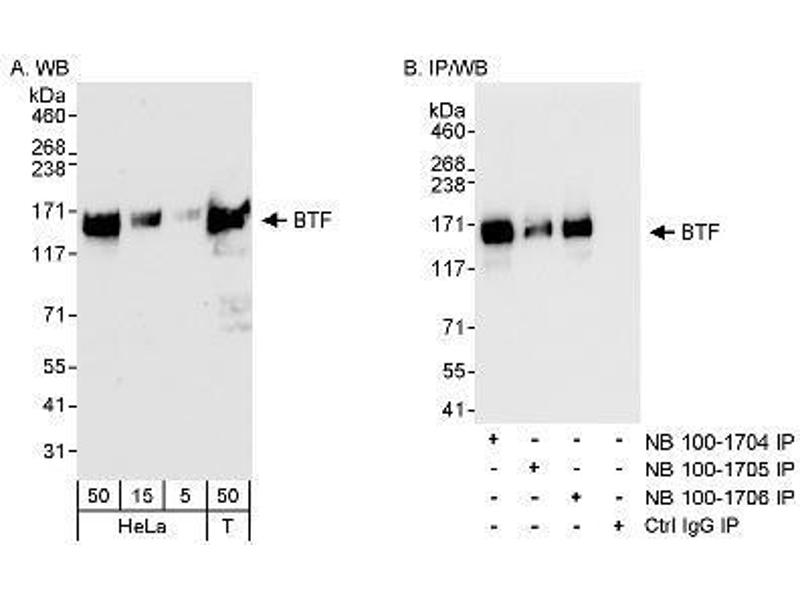 Western Blotting (WB) image for anti-BCL2-Associated Transcription Factor 1 (BCLAF1) (AA 150-200) antibody (ABIN151225)