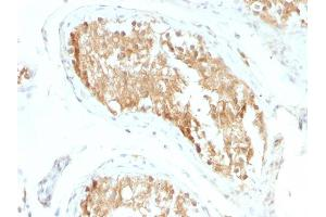 Image no. 3 for anti-Aldehyde Dehydrogenase 1 Family, Member A1 (ALDH1A1) (AA 315-434) antibody (ABIN6939366)