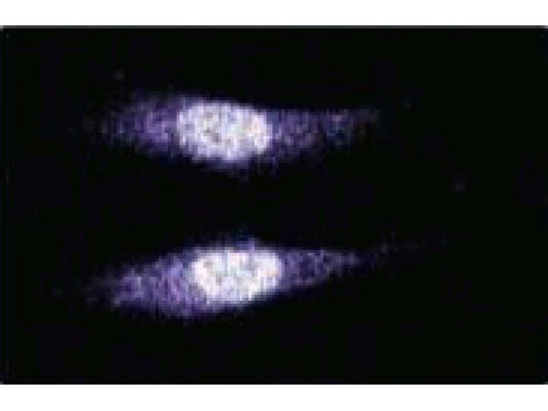 Immunofluorescence (IF) image for anti-MAD2 Mitotic Arrest Deficient-Like 2 (Yeast) (MAD2L2) (AA 81-180) antibody (ABIN968795)