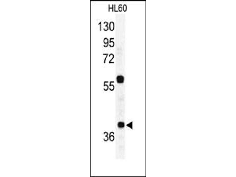 image for anti-RAD23 Homolog A (S. Cerevisiae) (RAD23A) (C-Term) antibody (ABIN357606)