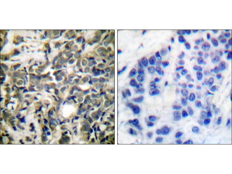 Image no. 3 for anti-Tyrosine 3-Monooxygenase/tryptophan 5-Monooxygenase Activation Protein, zeta Polypeptide (YWHAZ) (pSer58) antibody (ABIN1574324)