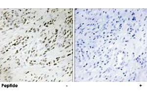 Image no. 2 for anti-Teashirt Zinc Finger Homeobox 2 (tshz2) antibody (ABIN5590290)