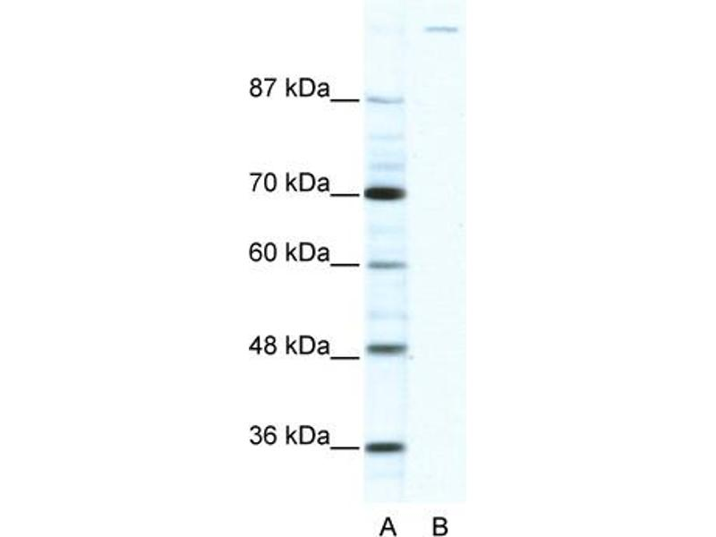 Western Blotting (WB) image for anti-Zinc Finger Protein GLI1 (GLI1) (C-Term) antibody (ABIN2779593)