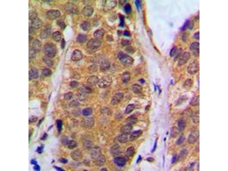 Immunohistochemistry (IHC) image for anti-Nuclear Factor of kappa Light Polypeptide Gene Enhancer in B-Cells 1 (NFKB1) (C-Term), (pSer927) antibody (ABIN2705039)