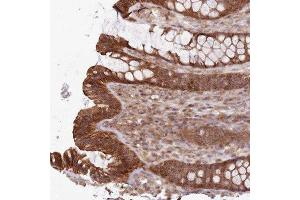 Immunohistochemistry (Paraffin-embedded Sections) (IHC (p)) image for anti-RAS p21 Protein Activator 3 (RASA3) 抗体 (ABIN4349397)
