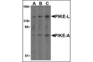 Image no. 2 for anti-ArfGAP with GTPase Domain, Ankyrin Repeat and PH Domain 2 (AGAP2) (C-Term) antibody (ABIN500501)
