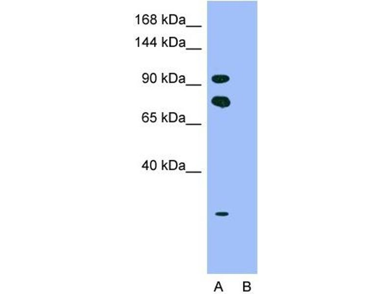 Western Blotting (WB) image for anti-Homeodomain Interacting Protein Kinase 2 (HIPK2) (Middle Region) antibody (ABIN2779735)