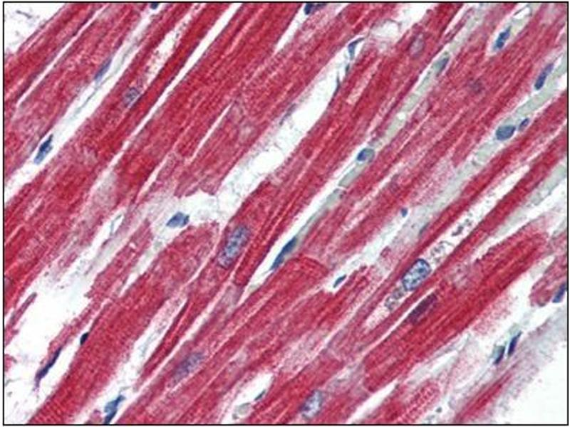 Immunohistochemistry (Paraffin-embedded Sections) (IHC (p)) image for anti-Leptin Receptor antibody (LEPR) (Internal Region) (ABIN614904)