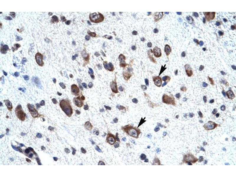Immunohistochemistry (Paraffin-embedded Sections) (IHC (p)) image for anti-Mortality Factor 4 Like 2 (MORF4L2) (N-Term) antibody (ABIN2778086)