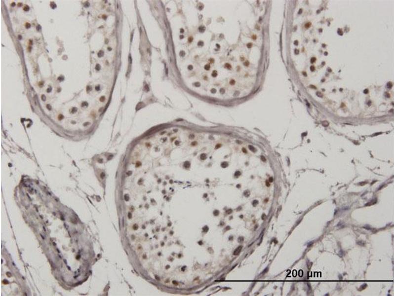 Immunohistochemistry (IHC) image for anti-Interferon Regulatory Factor 5 (IRF5) (AA 395-505) antibody (ABIN4948227)
