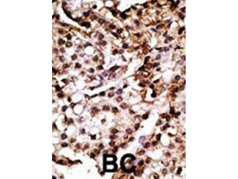 Immunohistochemistry (IHC) image for anti-ATG7 Autophagy Related 7 Homolog (S. Cerevisiae) (ATG7) (AA 22-51), (N-Term) antibody (ABIN388520)