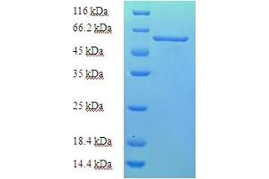 Image no. 1 for AarF Domain Containing Kinase 2 (ADCK2) (AA 200-609) protein (His-SUMO Tag) (ABIN5711461)