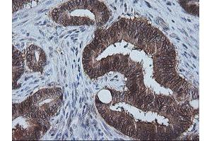 Image no. 1 for anti-Cytidine Monophosphate (UMP-CMP) Kinase 1, Cytosolic (CMPK1) antibody (ABIN1497541)