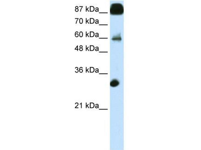 Western Blotting (WB) image for anti-CCCTC-Binding Factor (Zinc Finger Protein) (CTCF) (N-Term) antibody (ABIN2780790)
