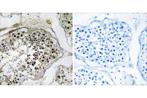 Image no. 1 for anti-ELOVL Fatty Acid Elongase 2 (ELOVL2) (Internal Region) antibody (ABIN1576258)