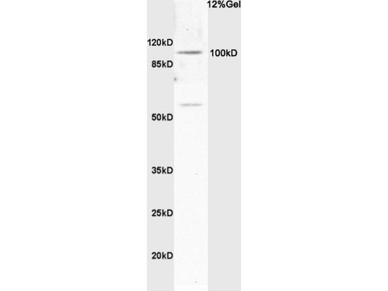 SDS-PAGE (SDS) image for anti-Synuclein, alpha Interacting Protein (SNCAIP) (AA 61-100) antibody (ABIN736163)