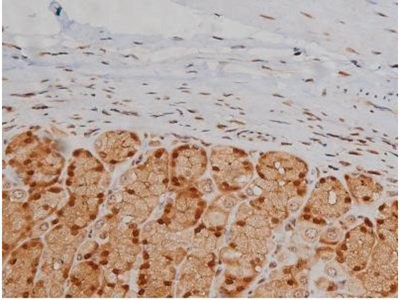 Immunohistochemistry (IHC) image for anti-Insulin-Like Growth Factor 1 Receptor (IGF1R) (pTyr1346) antibody (ABIN6256637)