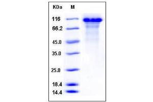 Image no. 1 for Kininogen 1 (KNG1) (AA 19-644) (Active) protein (His tag) (ABIN2003007)