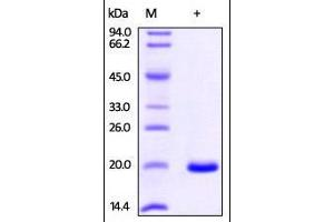 Image no. 1 for Non-Metastatic Cells 1, Protein (NM23A) Expressed in (NME1) (AA 2-152) protein (His tag) (ABIN2870673)