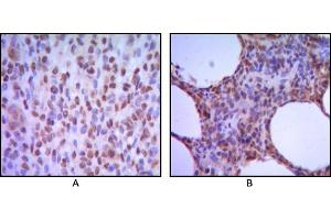 Image no. 3 for anti-Melanoma Associated Antigen (Mutated) 1 (MUM1) antibody (ABIN969298)