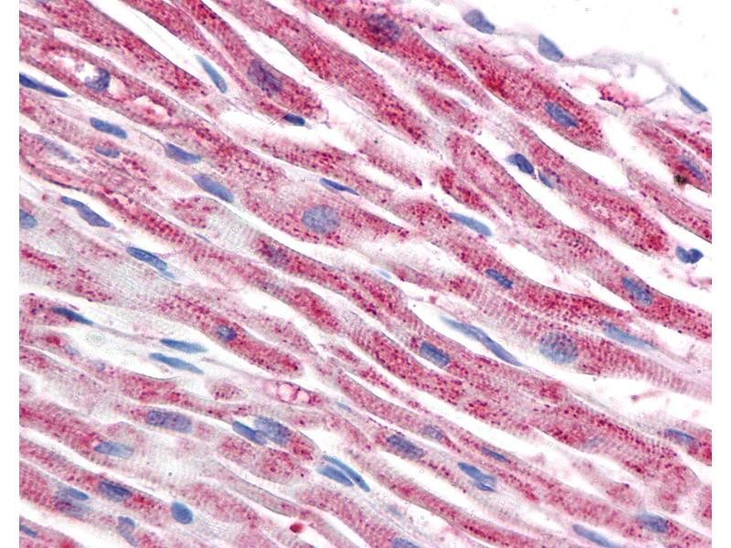 Immunohistochemistry (IHC) image for anti-Tubulin, beta (TUBB) antibody (ABIN239815)