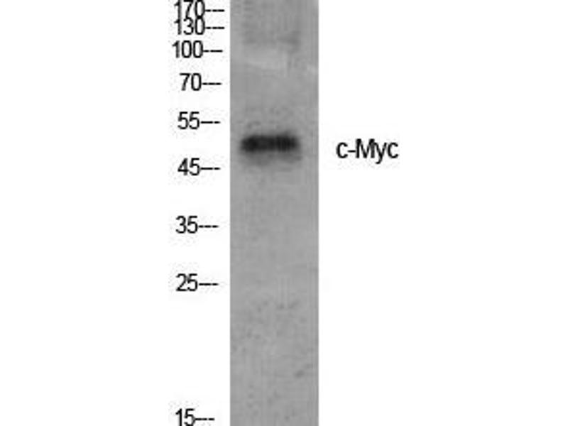 Western Blotting (WB) image for anti-C-MYC antibody (V-Myc Myelocytomatosis Viral Oncogene Homolog (Avian)) (Ser95) (ABIN3183979)