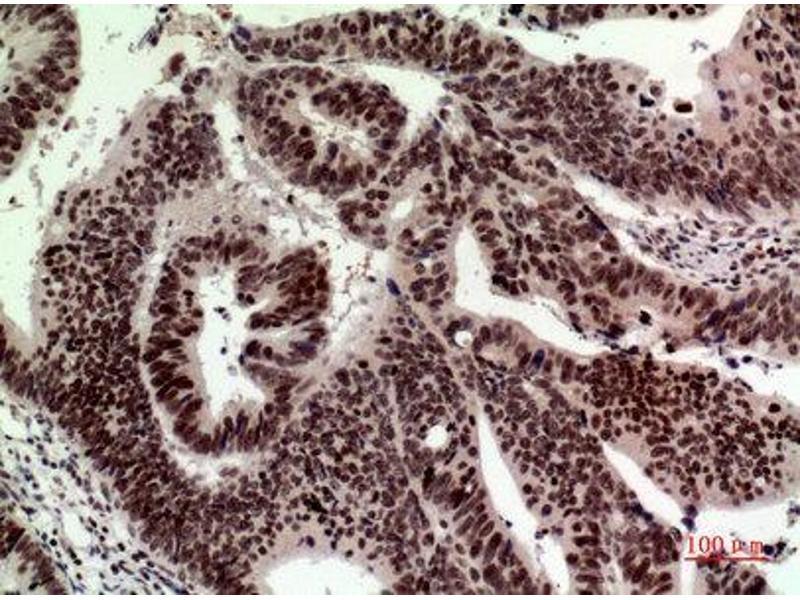 Immunohistochemistry (IHC) image for anti-Tumor Protein P53 (TP53) (Internal Region) antibody (ABIN3181054)