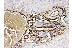 Immunohistochemistry (IHC) image for anti-ATP-Binding Cassette, Sub-Family B (MDR/TAP), Member 4 (ABCB4) (AA 601-720) antibody (ABIN3043734)