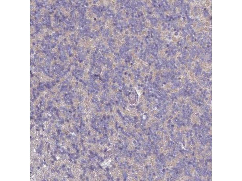 Immunohistochemistry (Paraffin-embedded Sections) (IHC (p)) image for anti-CD3g Molecule, gamma (CD3-TCR Complex) (CD3G) antibody (ABIN4291749)