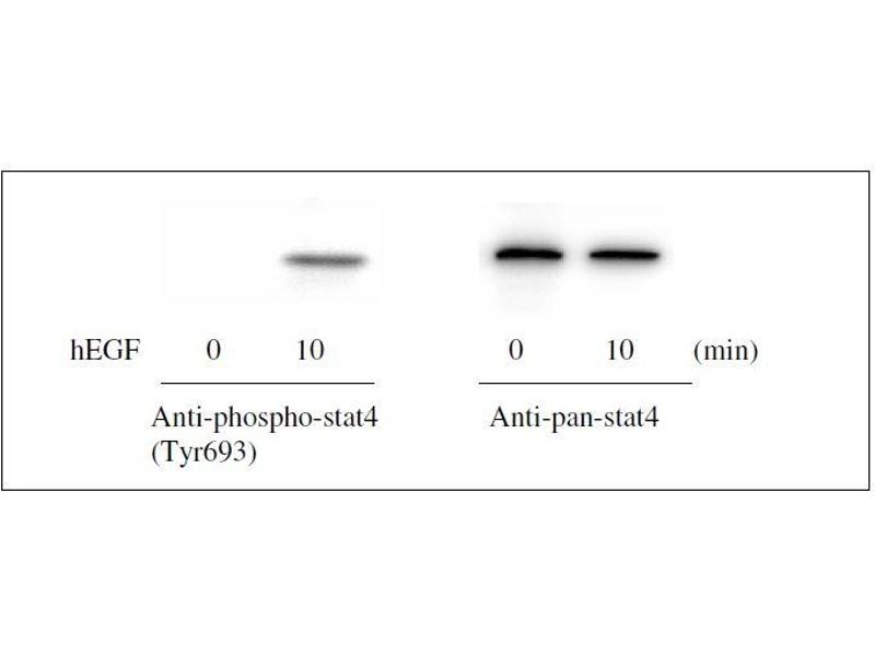 Western Blotting (WB) image for STAT4 ELISA Kit (Signal Transducer and Activator of Transcription 4) (ABIN1981841)