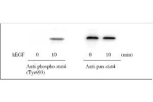Western Blotting (WB) image for Signal Transducer and Activator of Transcription 4 (STAT4) ELISA Kit (ABIN1981841)