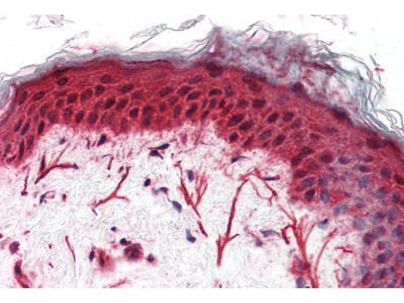 Immunohistochemistry (IHC) image for anti-Frizzled Family Receptor 3 (FZD3) (N-Term) antibody (ABIN1048620)