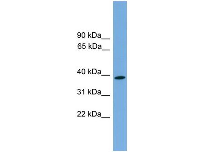 Western Blotting (WB) image for anti-Wingless-Type MMTV Integration Site Family, Member 3 (WNT3) (Middle Region) antibody (ABIN2783983)